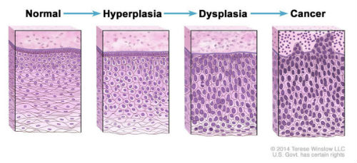 hyperplasia dysplasia cancer progression article1