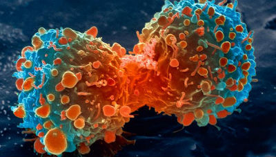 lung cancer cell dividing article2016