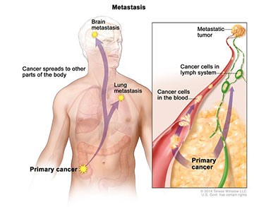 metastasis article